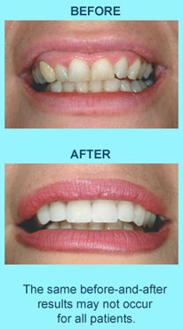 Cosmetic Dentist Concord CA | Smile makeovers with veneers