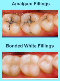 White Dental Fillings Concord CA